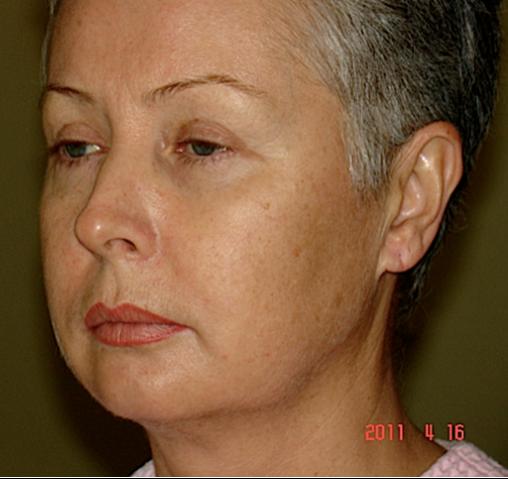 Подтяжка лица, блефаропластика - Цены, Отзывы, Фото