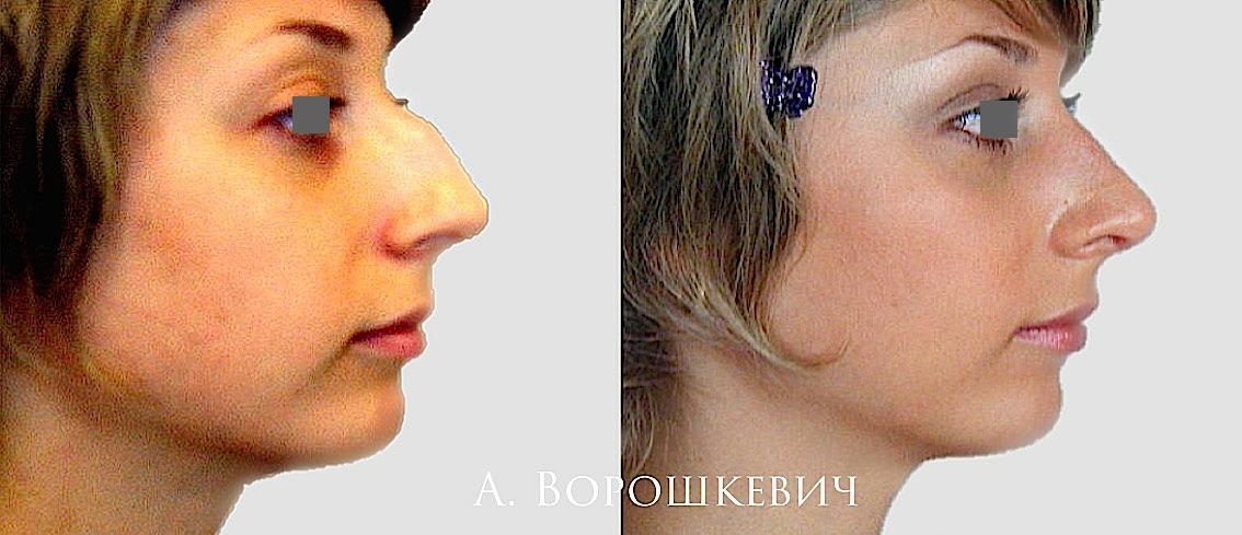 Как сделать себе нос с горбинкой 230