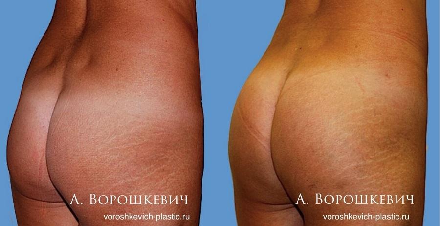 увеличение ягодиц протезированием в Москве.jpg