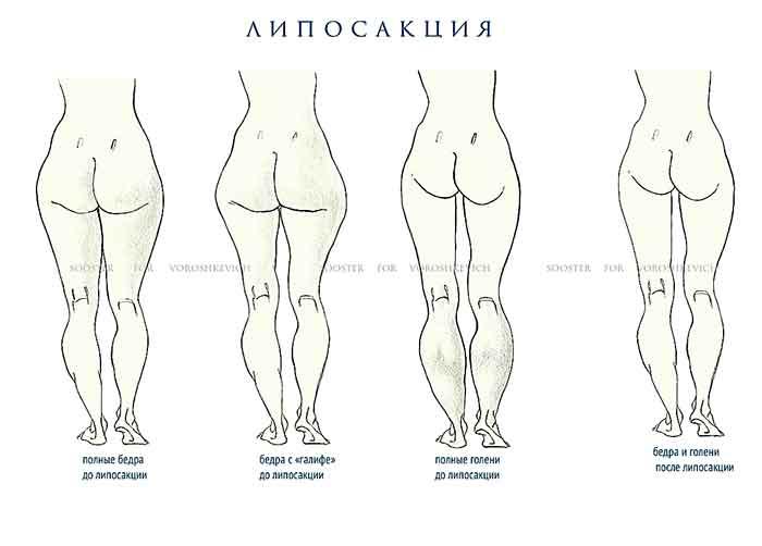 сколько стоит липосакция всего тела маріуполь украине