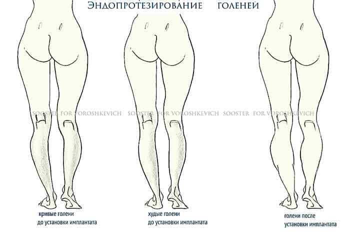убрать жир с колен ног